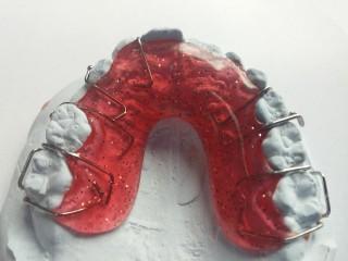 Die durchsichtige Zahnspange aus dem 3D Drucker